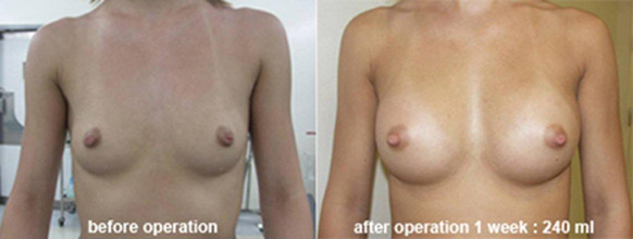 breast_enlarge_be02