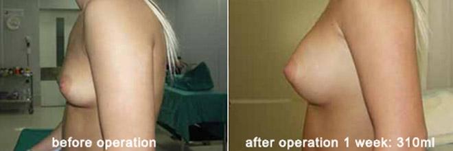 breast_enlarge_be04