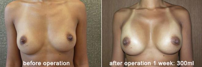 breast_enlarge_be05