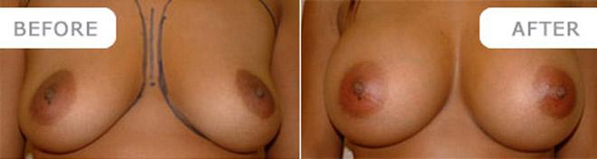 breastenlarge_1