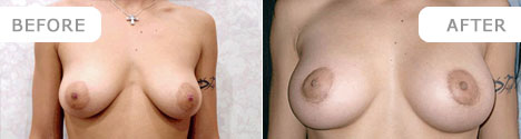 breastenlarge_11