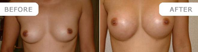 breastenlarge_4
