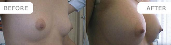breastenlarge_7