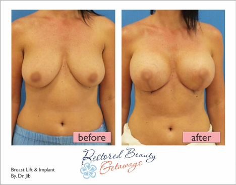 Breast implant lift picture share your