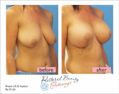 breastlift-implant-02
