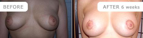 breastlift_4