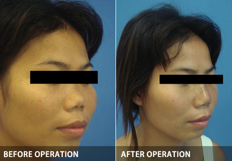 rhinoplasty-augmentation01