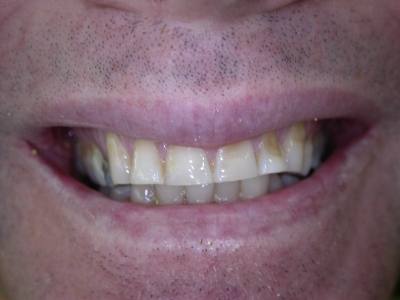 veneers_1Before