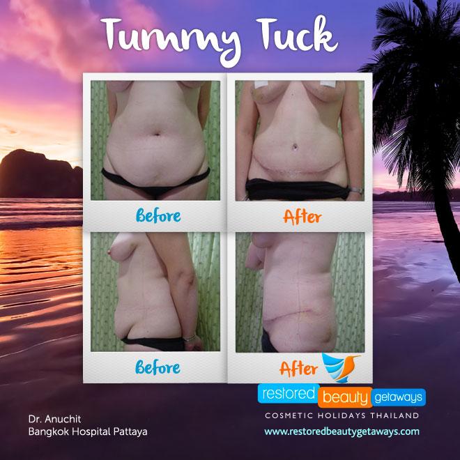 1199_tummy_tuck2