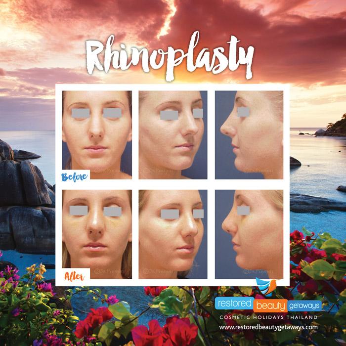 1623.RBG_rhinoplasty12
