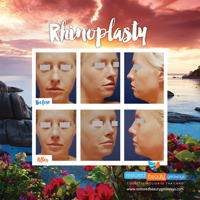 1623.RBG_rhinoplasty13
