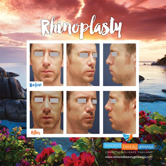 1623.RBG_rhinoplasty15