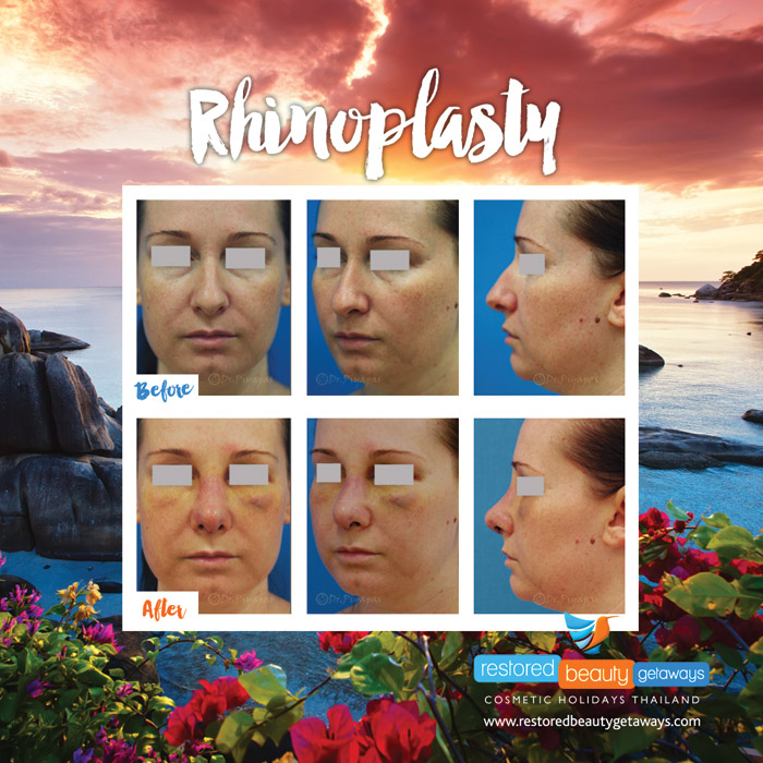 1623.RBG_rhinoplasty21