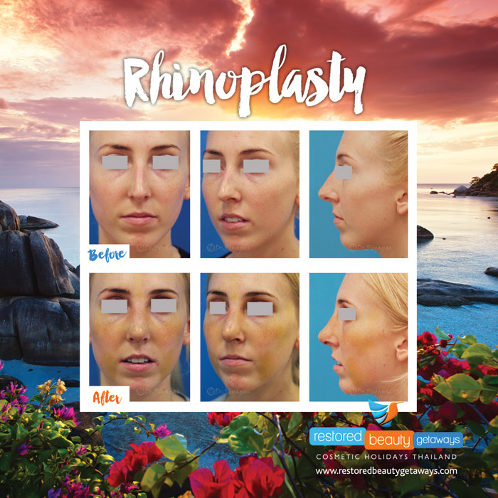 1623.RBG_rhinoplasty23