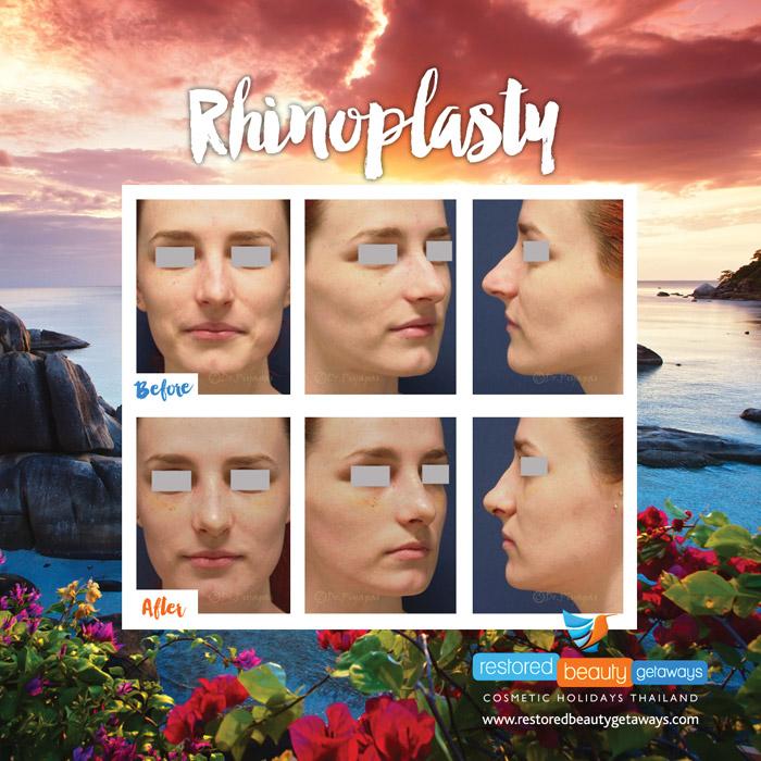 1623.RBG_rhinoplasty7