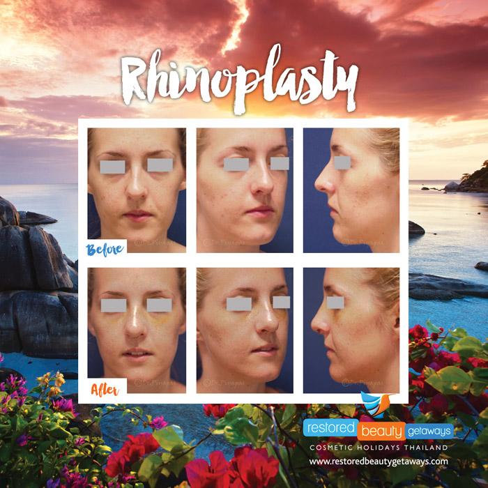 1623.RBG_rhinoplasty8