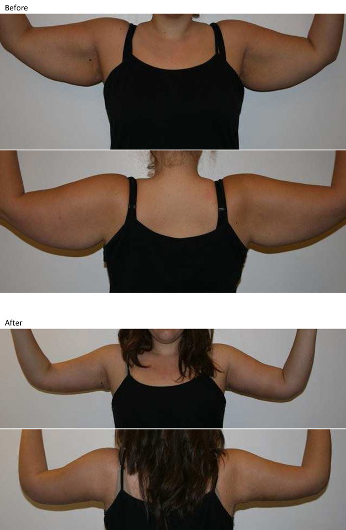 upper arm lift