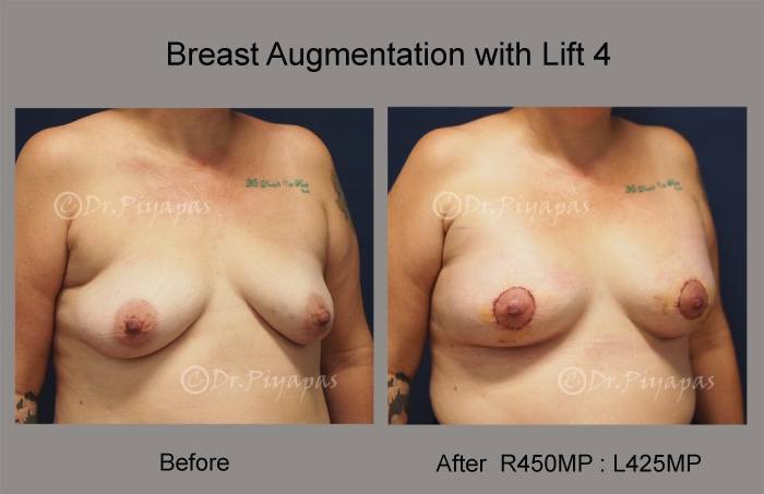 breast-augmentation-with-lift-10