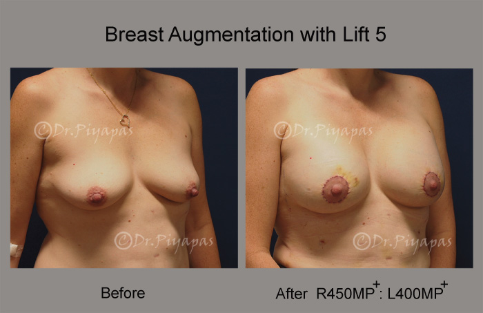 breast-augmentation-with-lift-12