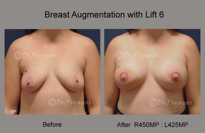 breast-augmentation-with-lift-13