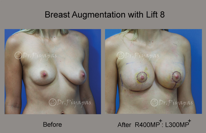 breast-augmentation-with-lift-18