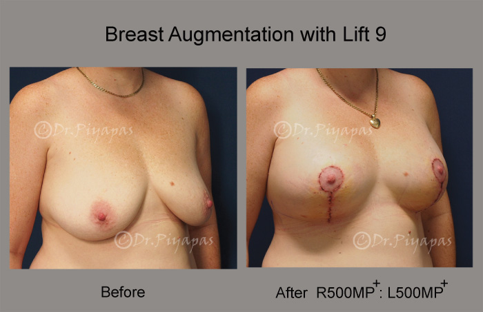 breast-augmentation-with-lift-20