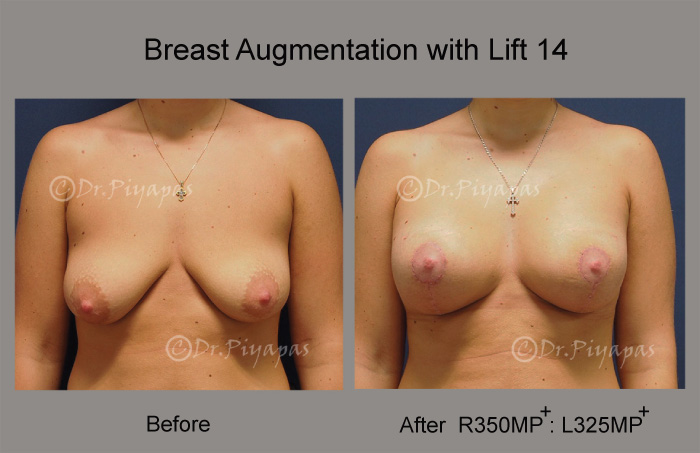 breast-augmentation-with-lift-29