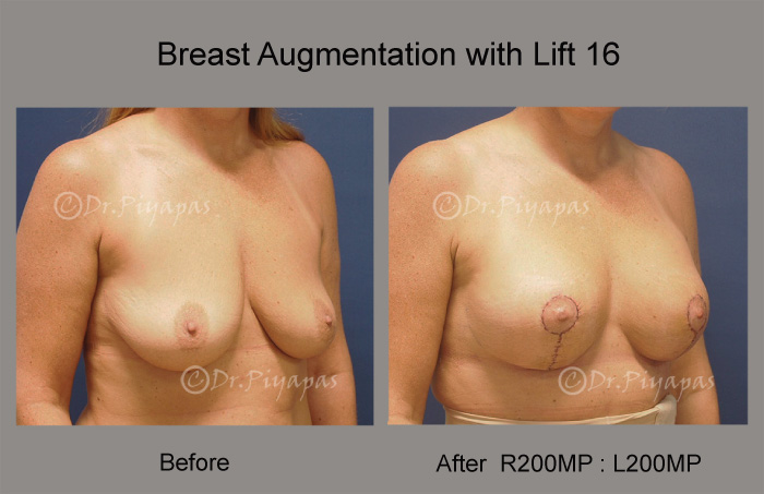 breast-augmentation-with-lift-34