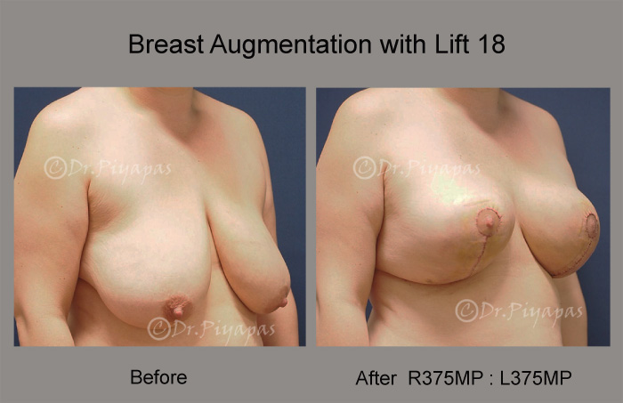 breast-augmentation-with-lift-38
