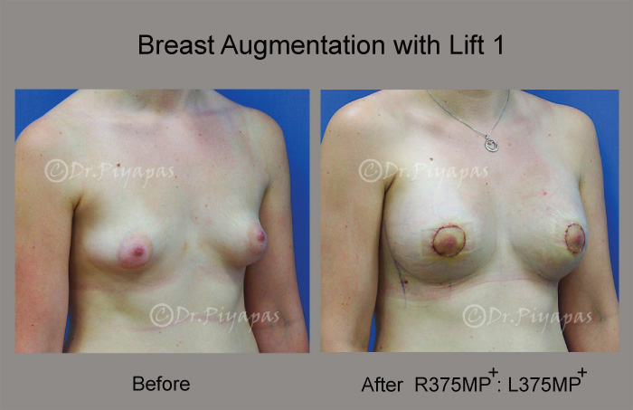 breast-augmentation-with-lift-4