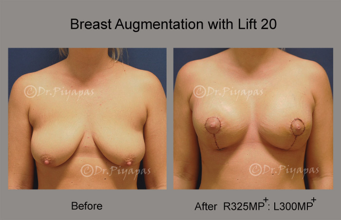 breast-augmentation-with-lift-41
