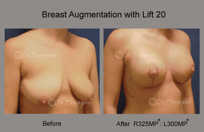 breast-augmentation-with-lift-42