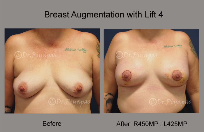 breast-augmentation-with-lift-9