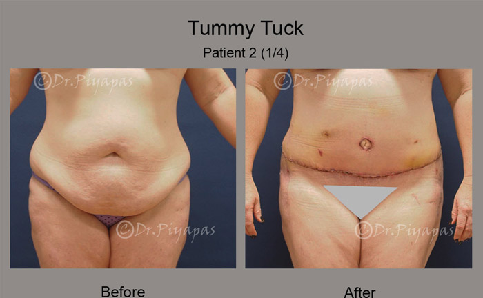 tummy-tuck2