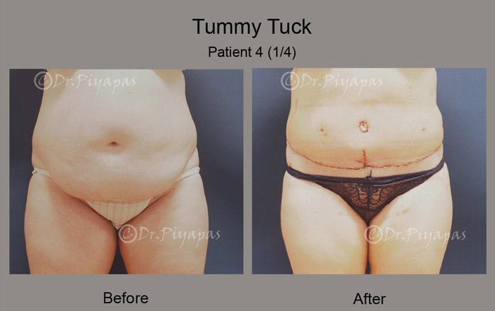 tummy-tuck3