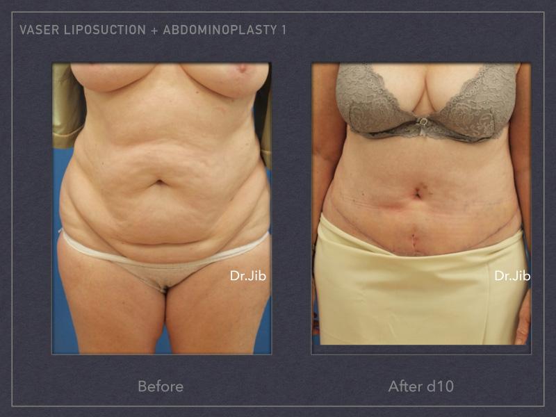 abdominoplasty-1
