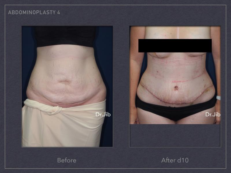 abdominoplasty-5