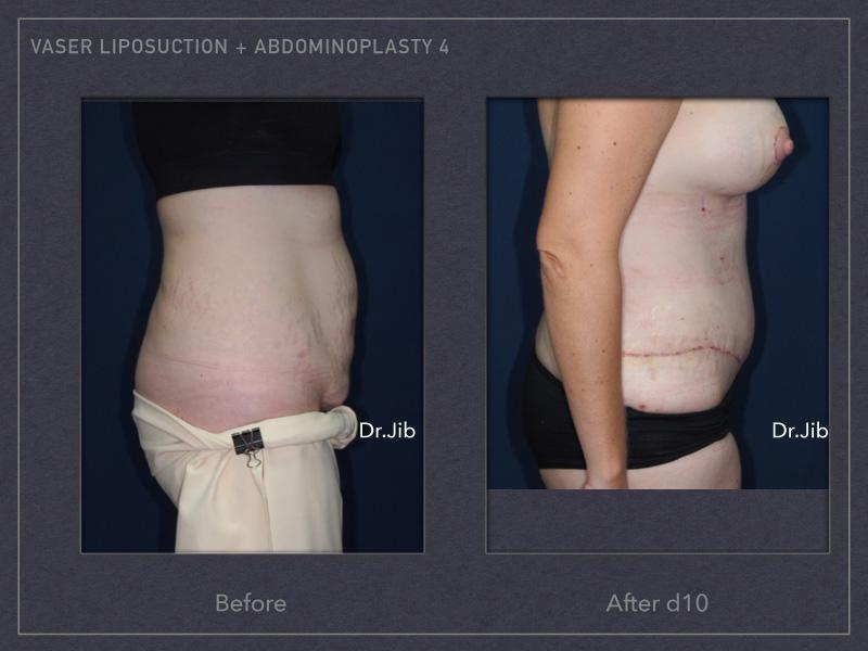 abdominoplasty-6