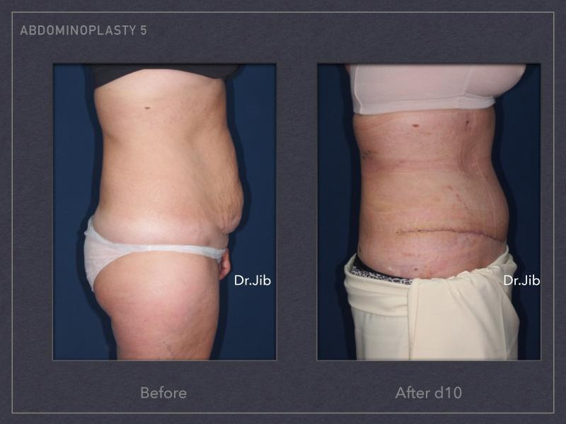 abdominoplasty-8