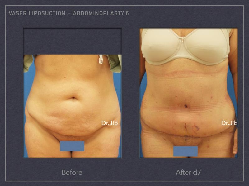 abdominoplasty-9