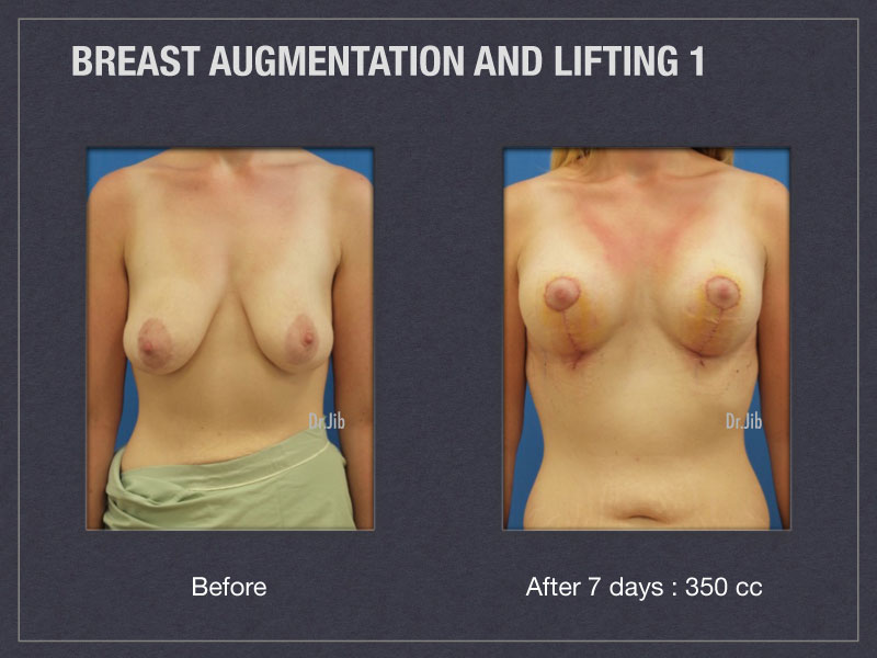 breast-augmentation-lift-1
