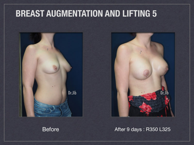 breast-augmentation-lift-10