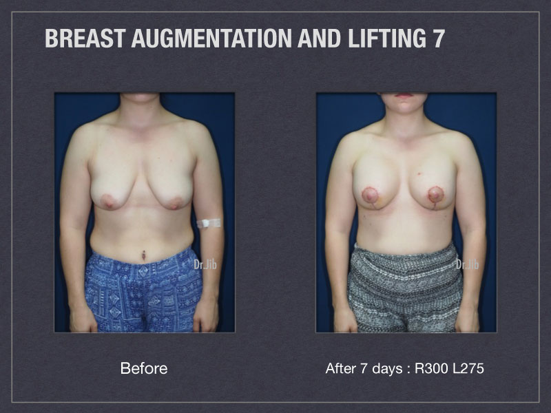 breast-augmentation-lift-13