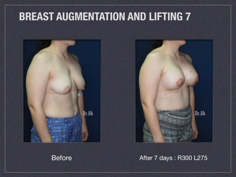 breast-augmentation-lift-14