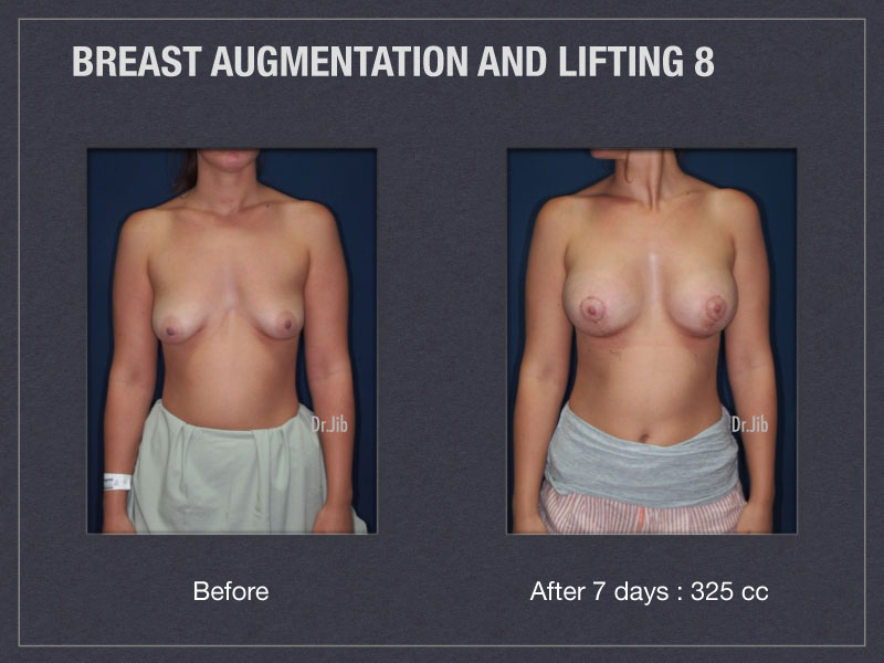 breast-augmentation-lift-15
