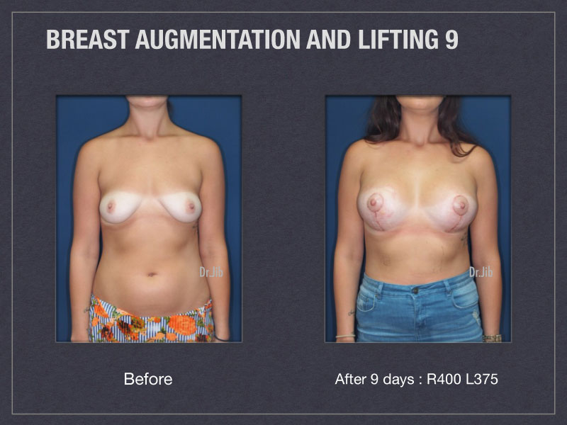 breast-augmentation-lift-17
