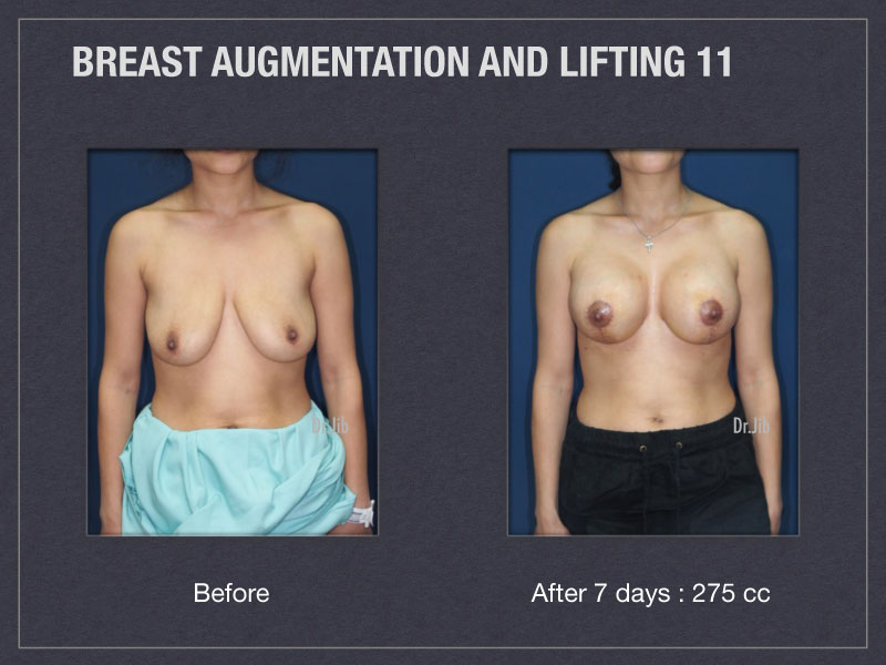 breast-augmentation-lift-21