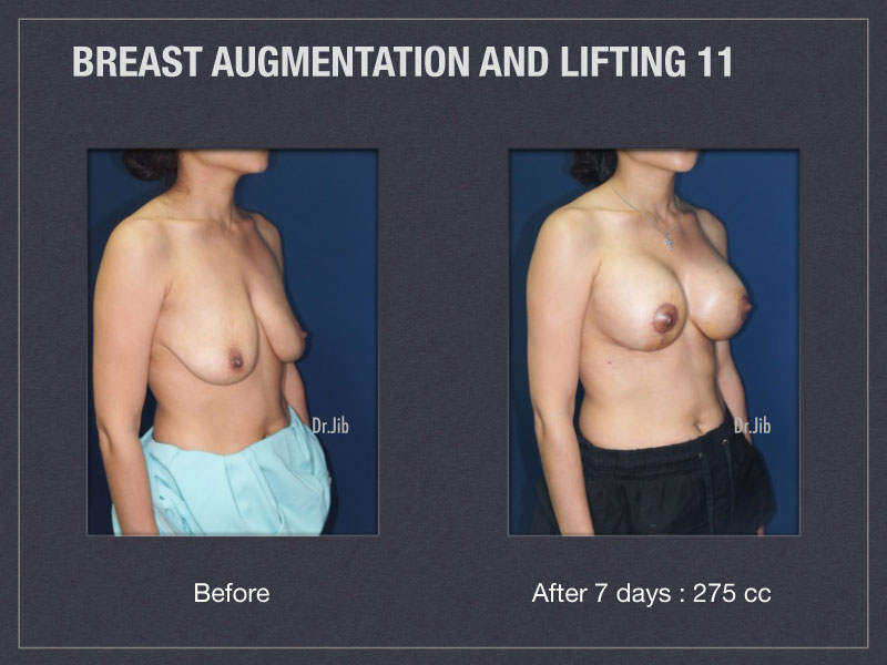 breast-augmentation-lift-22