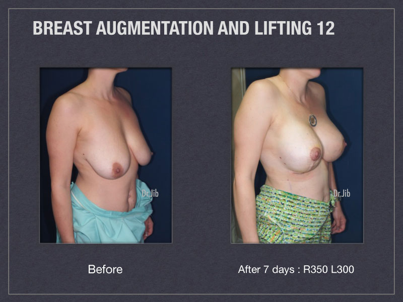 breast-augmentation-lift-24