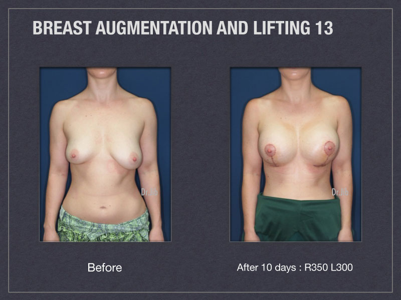 breast-augmentation-lift-25